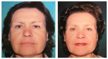 Botox photos - Before and After