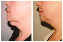 Lipoma removal - photo before and after