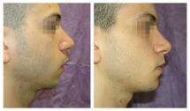 Genioplasty with chin silicone implant. Photos before and after 1 month.