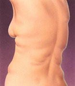 Liposuction and Liposculpture - Before and After